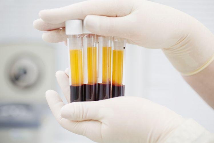 EsSalud prueba plasma de personas que vencieron al COVID-19 para mejorar a pacientes críticos.
